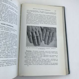 Vintage Medical Book 1939 Occupational Diseases Of The Skin Photos Medicine